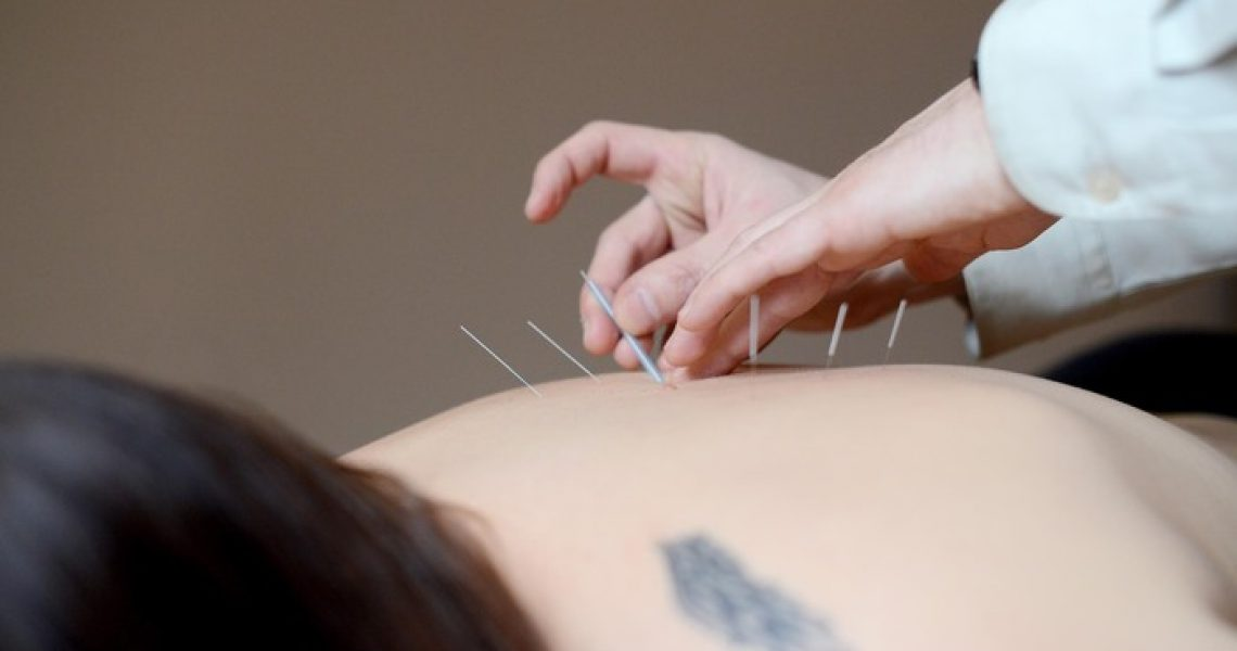 Learn More About Most Best And Effective Way Of Acupuncture