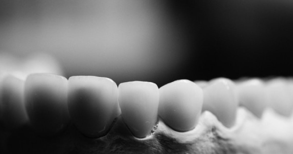Dental Implants: Way To Get That Perfect Smile!